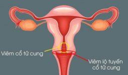 Vị trí cổ tử cung