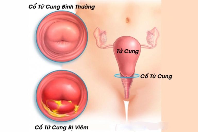 Viêm cổ tử cung là bệnh lý dẫn đến hiện tượng ra khí hư màu trắng đục ở nữ giới