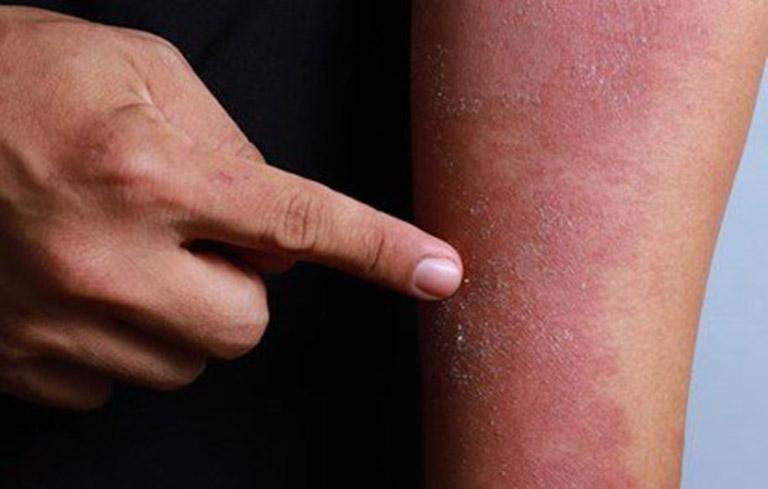 Vùng da bị viêm tấy đỏ, sưng nề gây ngứa ngáy, khó chịu