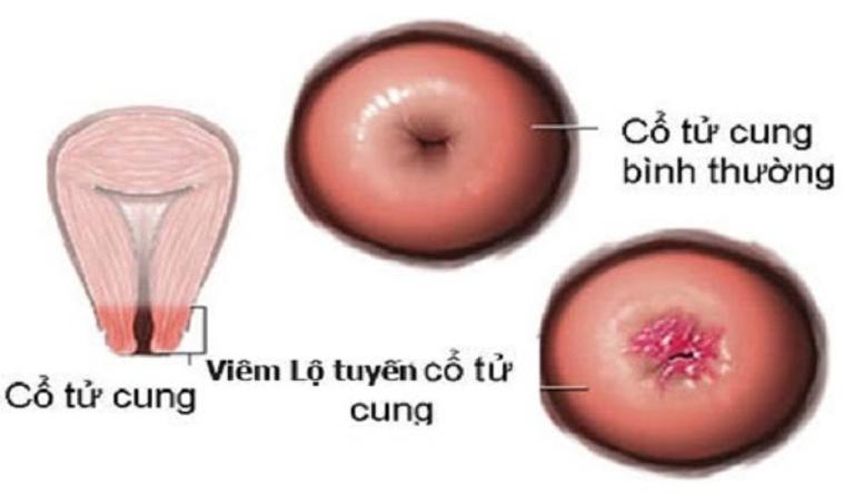 Khí hư lẫn máu là triệu chứng của căn bệnh phụ khoa viêm lộ tuyến cổ tử cung