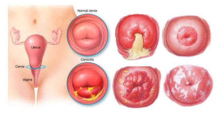 Nguyên nhân bị viêm lộ tuyến cổ tử cung