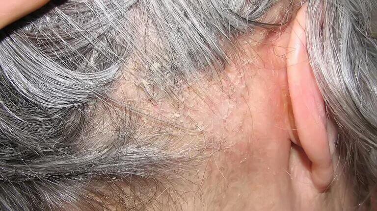 Viêm nang lông da đầu gây khó chịu và mất thẩm mỹ