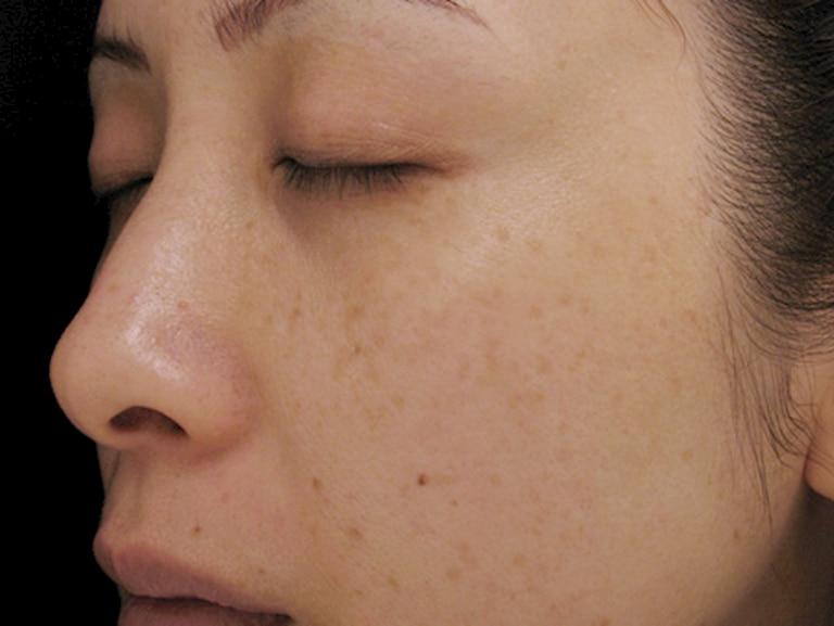 Chấm tàn nhang có thể gây ra một số hậu quả đáng lo ngại