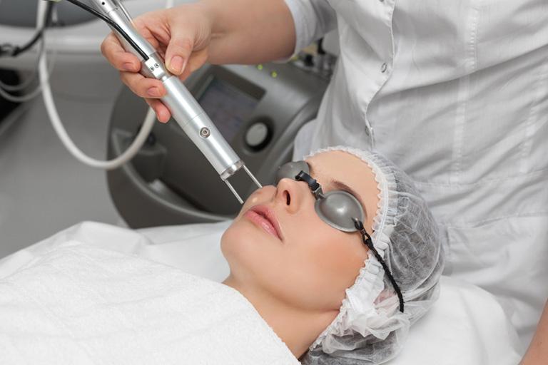 Bắn laser trị tàn nhang hết bao nhiêu tiền?