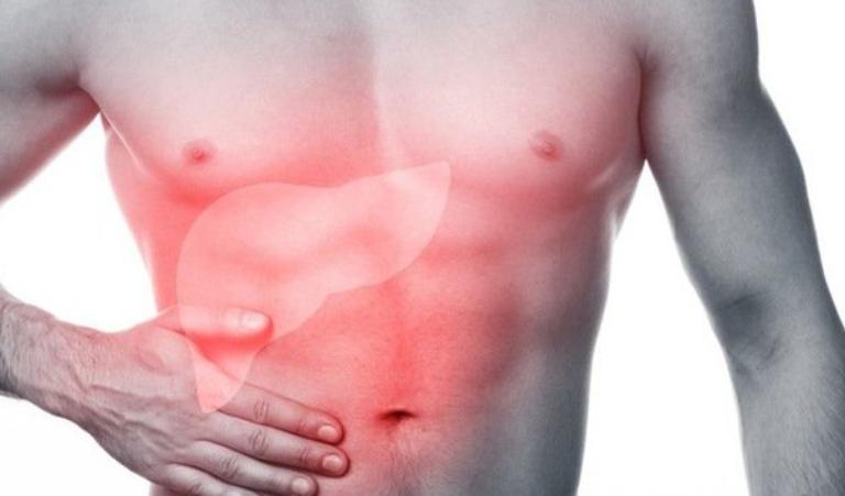 Xơ gan là một dạng tổn thương mạn tính tại gan, các tế bào khỏe mạnh bị thay thế bằng mô sẹo và mất đi chức năng vốn có