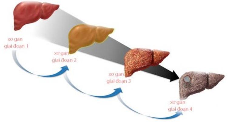 Bệnh xơ gan có thể điều trị khỏi hay còn tùy thuộc rất lớn vào mức độ tổn thương tại gan và sức khỏe của người bệnh