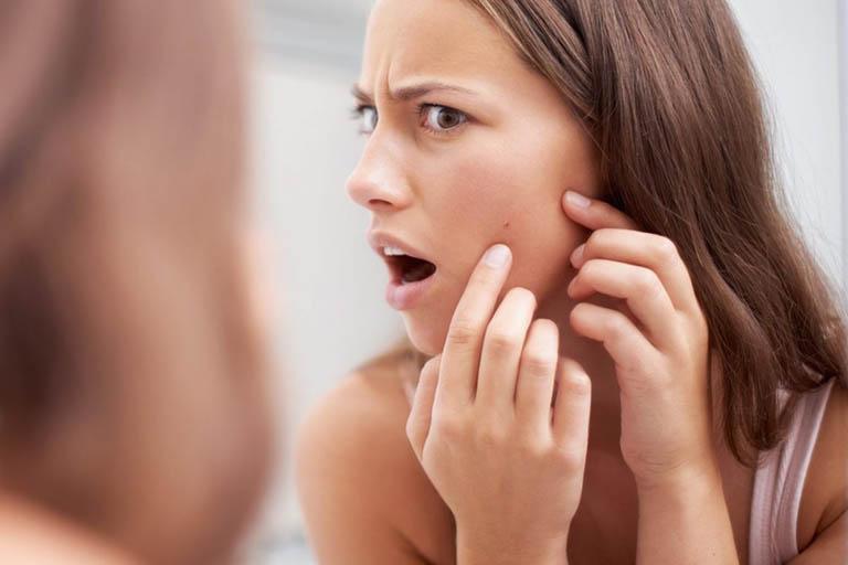 Cách chăm sóc da mụn ẩn - Đẩy sạch mụn, da mịn màng
