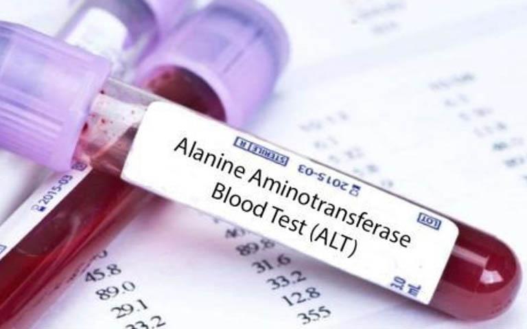 Nồng độ ALT và AST trong máu giúp đánh giá mức độ tổn thương gan
