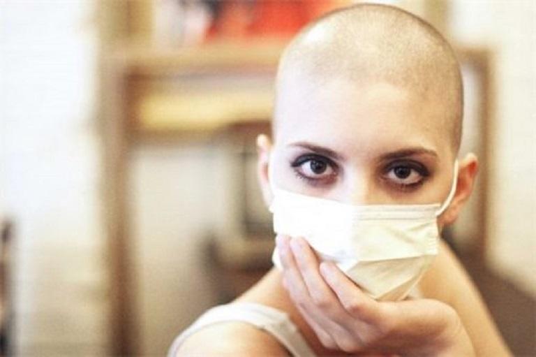 Rụng tóc sau khi hóa trị hoặc xạ trị là tình trạng phổ biến