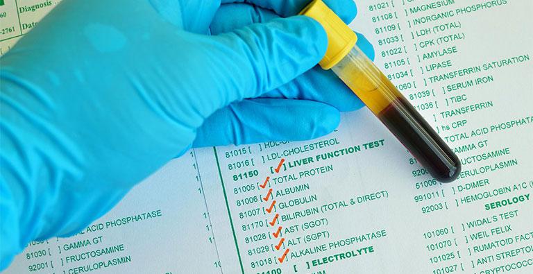 Kết quả xét nghiệm máu gan