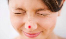Mụn bọc ở mũi - Nguyên nhân và cách trị hiệu quả