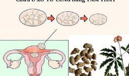 Tam thất chữa u xơ tử cung
