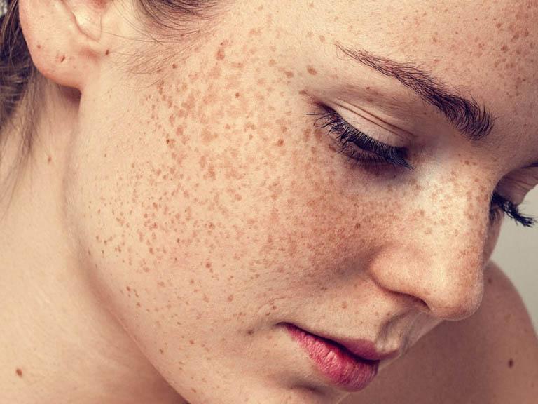 Tàn nhang là tổn thương lành tính xuất hiện phổ biến ở người da trắng