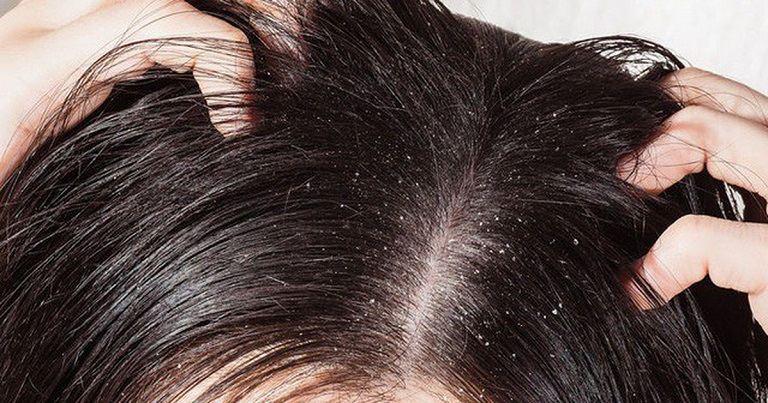 Có nên nhổ tóc sâu tóc ngứa không?