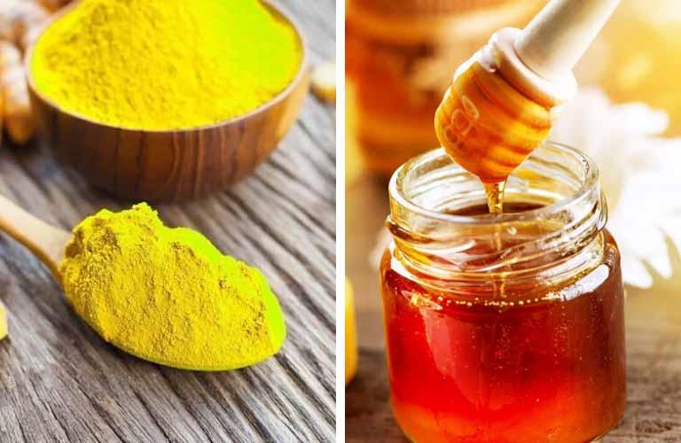 Nghệ và mật ong chua giúp chữa tàn nhang hiệu quả