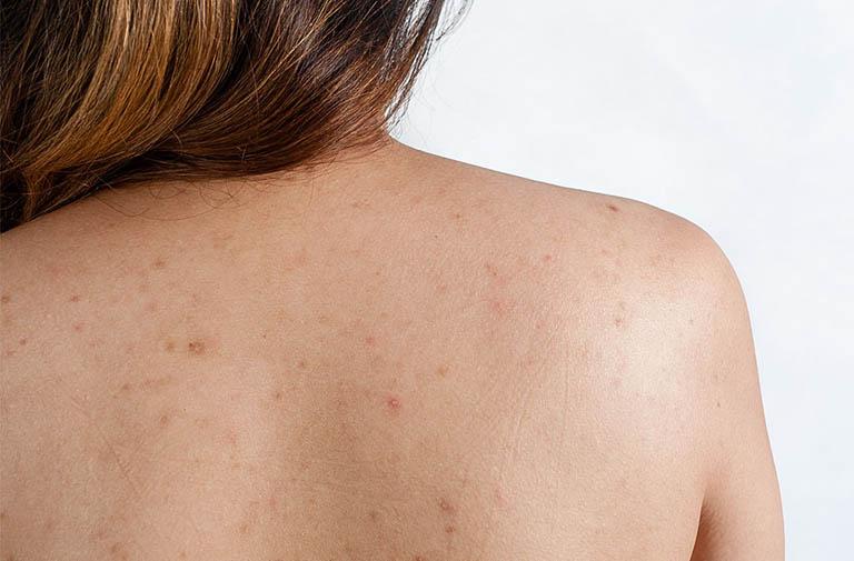 11 mẹo trị thâm mụn lưng cho lưng trần trắng sáng