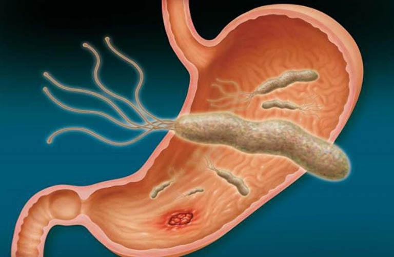 Omeprazol có khả năng kích thích hoạt động của vi khuẩn
