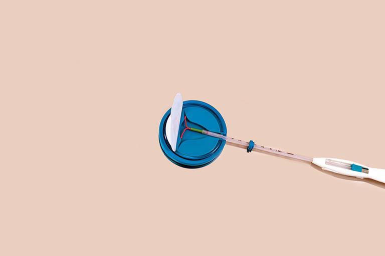 Nữ giới nên đặt vòng tránh thai sau khi sinh nếu không muốn thụ thai trong thời điểm chăm sóc con nhỏ