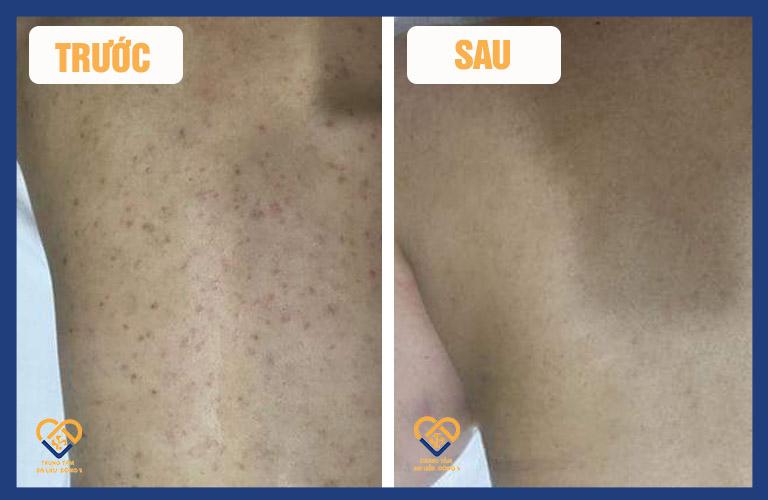 Một bệnh nhân đang được hỗ trợ điều trị viêm nang lông tại Trung tâm Da liễu Đông y Việt Nam