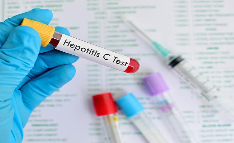 xét nghiệm viêm gan C