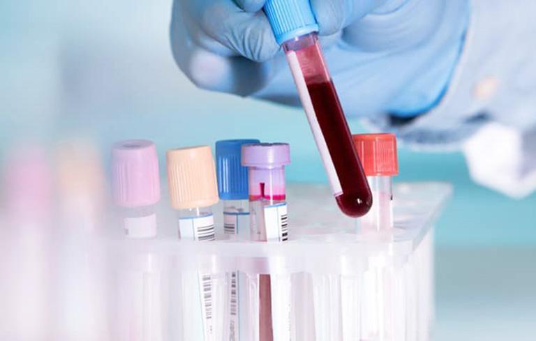 xét nghiệm chẩn đoán viêm gan C