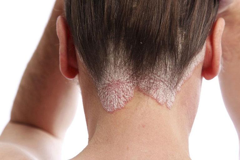 Á sừng da đầu gây ảnh hưởng nghiêm trọng đến thẩm mỹ bên ngoài của làn da