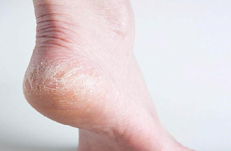 dấu hiệu bệnh á sừng ở chân