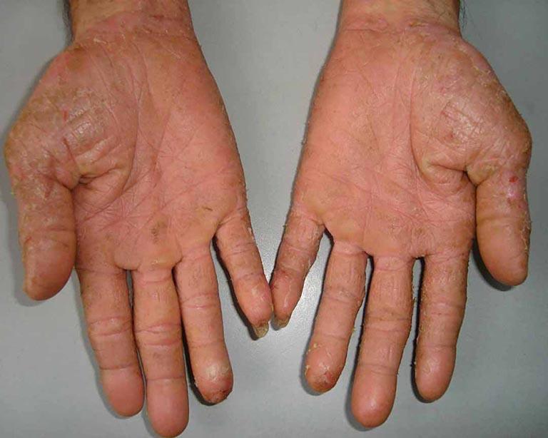 bệnh á sừng ở đầu ngón tay