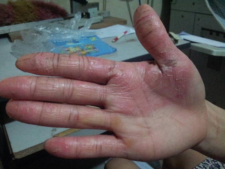 bệnh á sừng ở tay