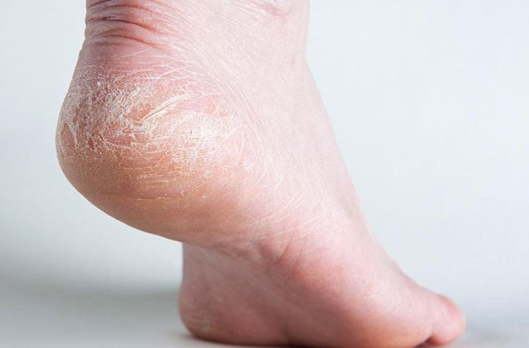 hình ảnh chàm khô ở chân