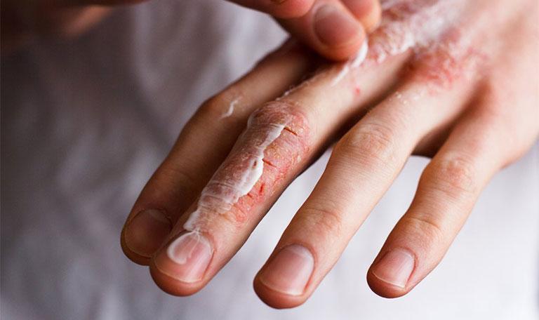 Chàm khô gây tổn thương ở đầu ngón tay gây ra nhiều bất tiện trong đời sống sinh hoạt hàng ngày