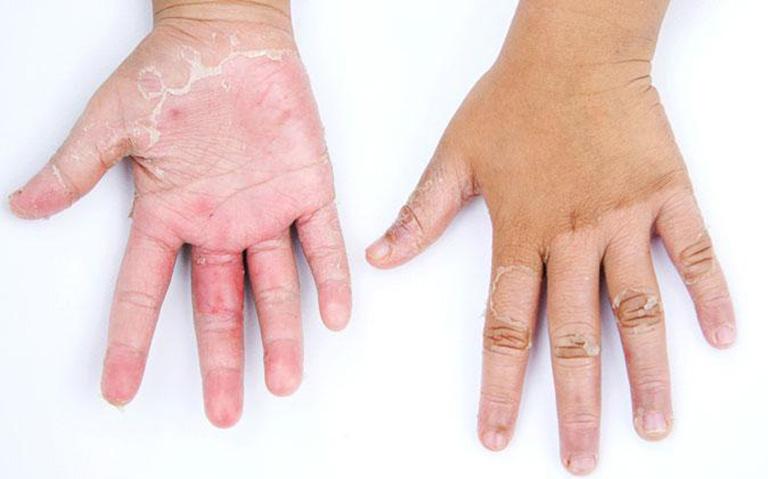 dấu hiệu bệnh chàm khô tróc vảy