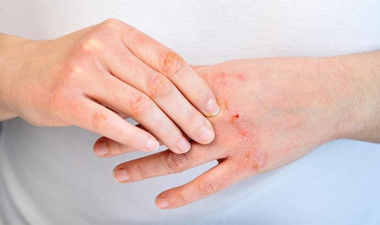 Da bị khô từng mảng là bệnh gì