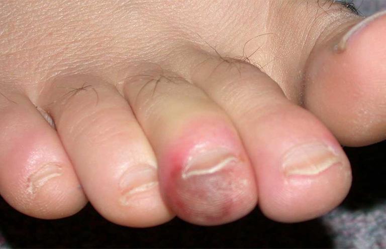 Đầu ngón chân bị khô nứt