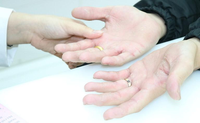 Thăm khám chuyên khoa khi nghi ngờ bản thân bị bệnh chàm khô ở đầu ngón tay