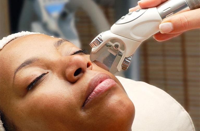 điều trị tàn nhang bằng laser