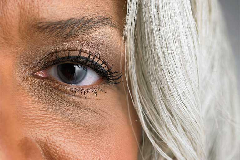 bệnh viêm mũi dị ứng gây thâm mắt