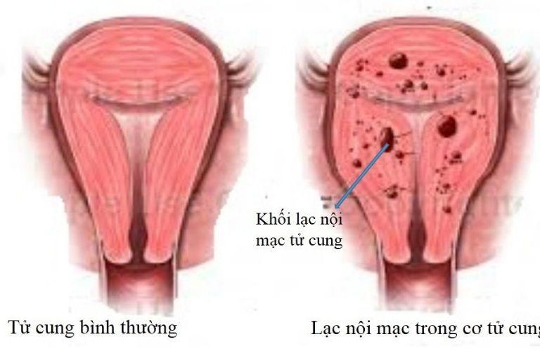 Vô sinh nữ do lạc nội mạc tử cung gây nên