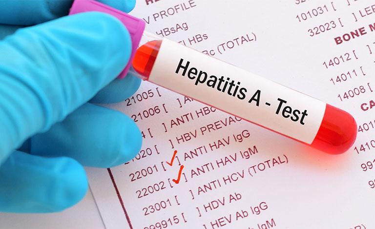 xét nghiệm viêm gan A