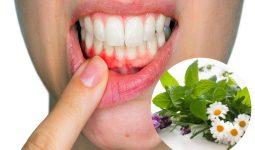 cách chữa viêm chân răng tại nhà