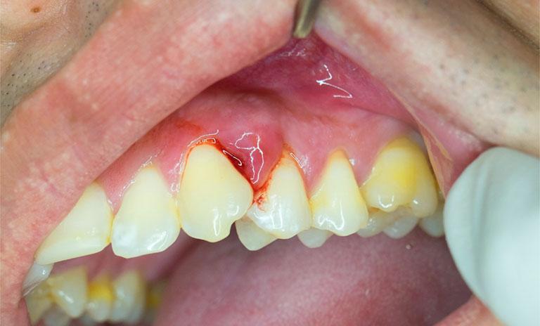 Tự nhiên chảy máu chân răng