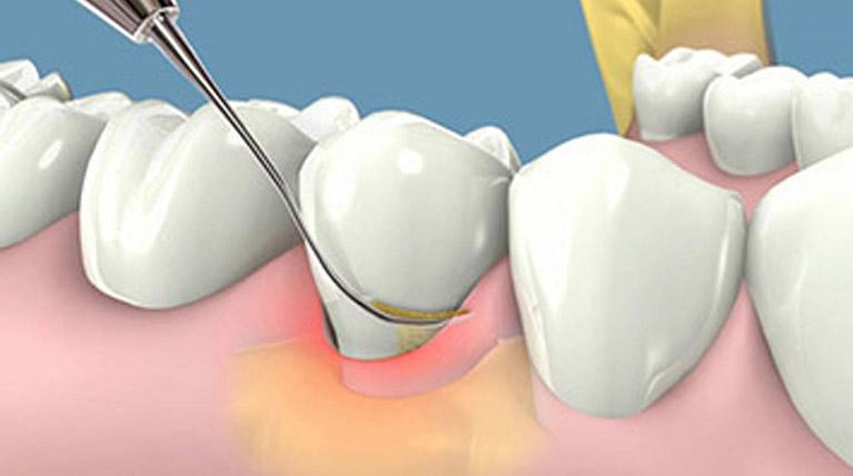 cách chữa viêm chân răng cho bà bầu