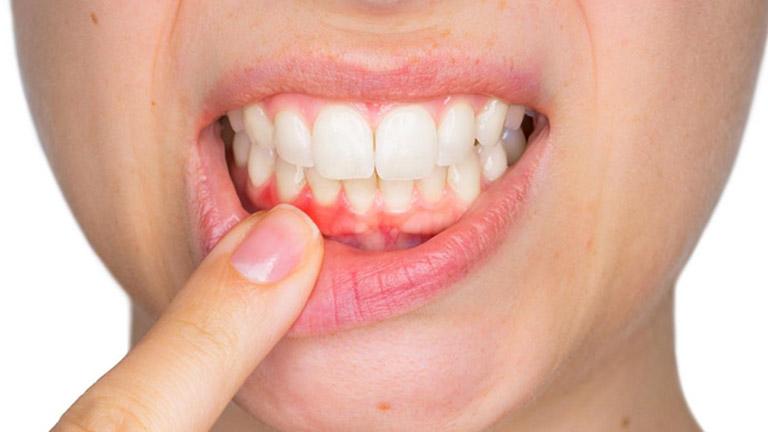 đánh răng bị chảy máu là bệnh gì
