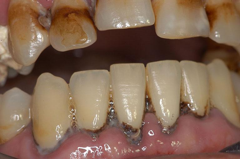 Cao răng gây hình thành nha chu