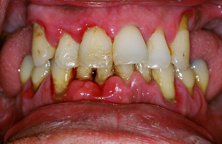 Răng ố vàng do bệnh viêm nha chu