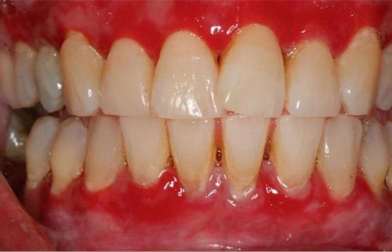 Viêm nướu khiến răng nhạy cảm