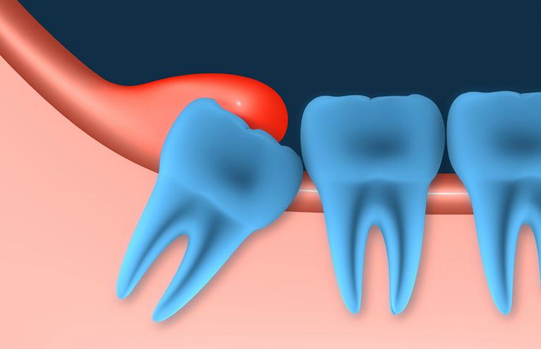 Chân răng nổi cục u