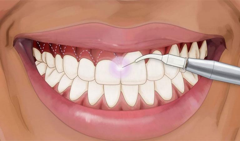 nướu răng chắc khoẻ