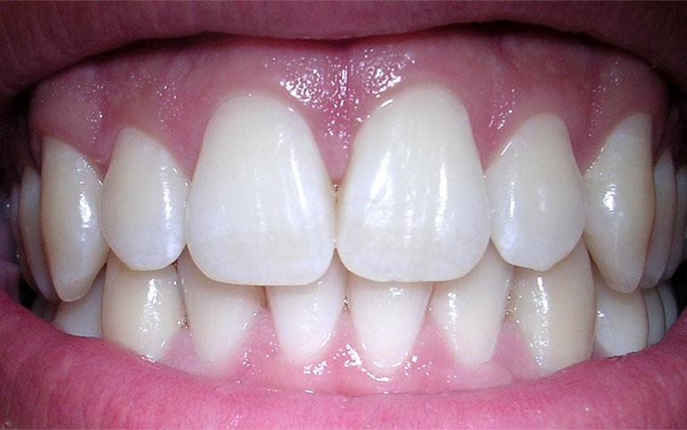 nướu răng là gì
