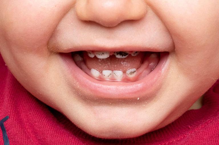 hình ảnh sâu răng trong giai đoạn đầu